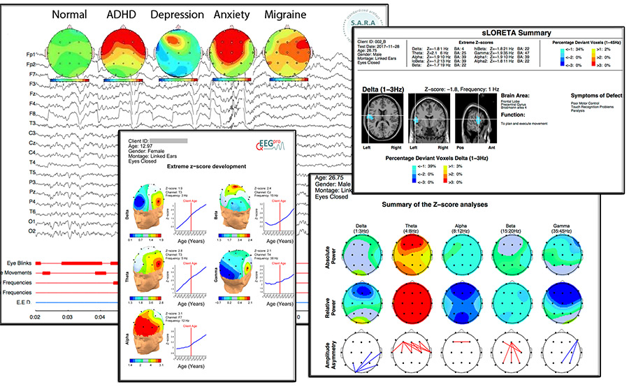 reporte mapeo cerebral brain training center